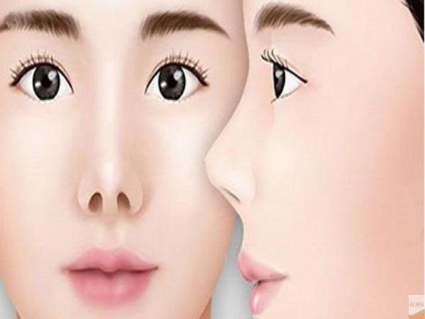 Xem tướng mũi hếch là người như thế nào? Xấu hay tốt?
